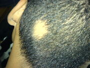 Circular coin-sized bare patch on the back of a person's scalp