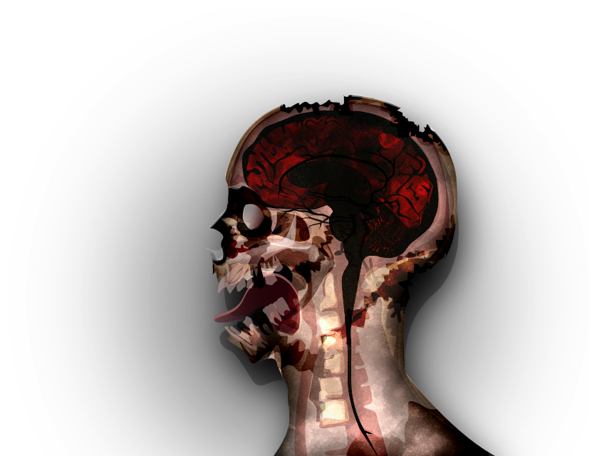 how to win plague parasite mega brutal